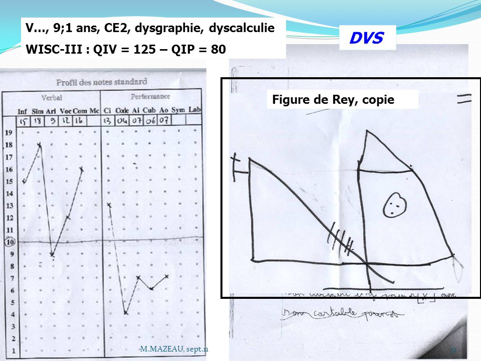 DVS V…, 9;1 ans, CE2, dysgraphie, dyscalculie