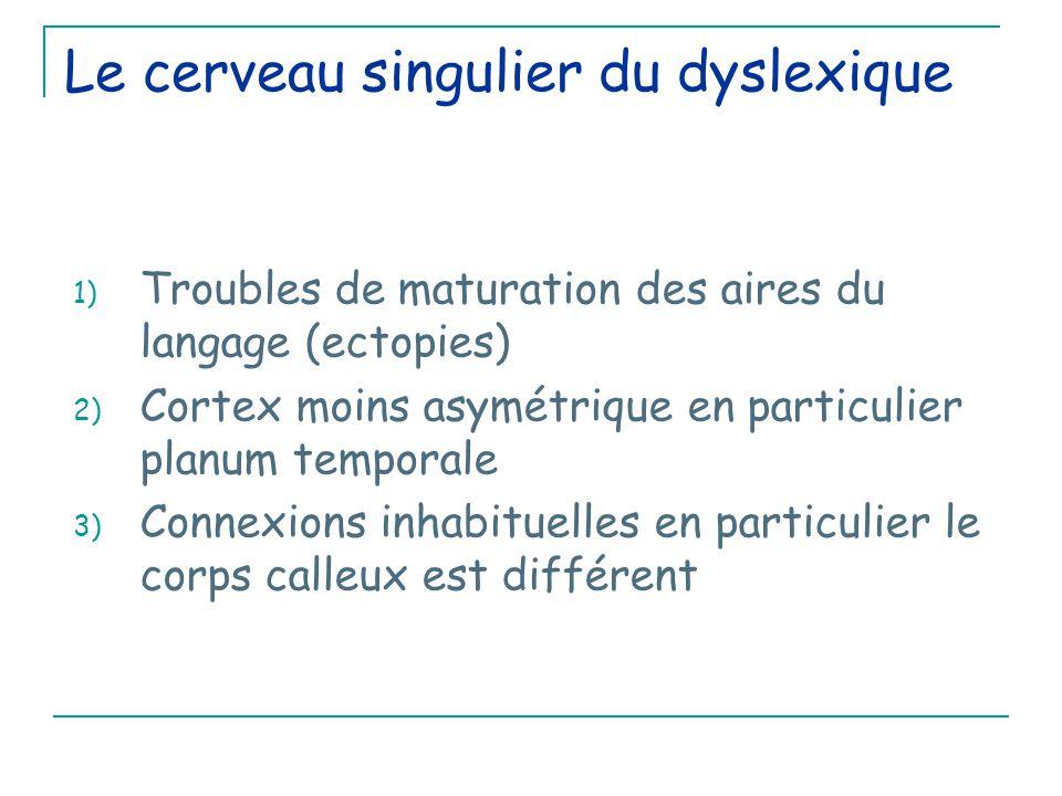 Le cerveau singulier du dyslexique