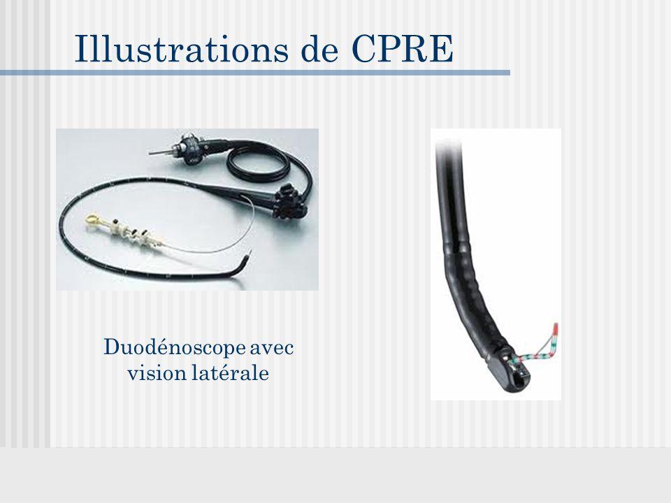 Duodénoscope avec vision latérale