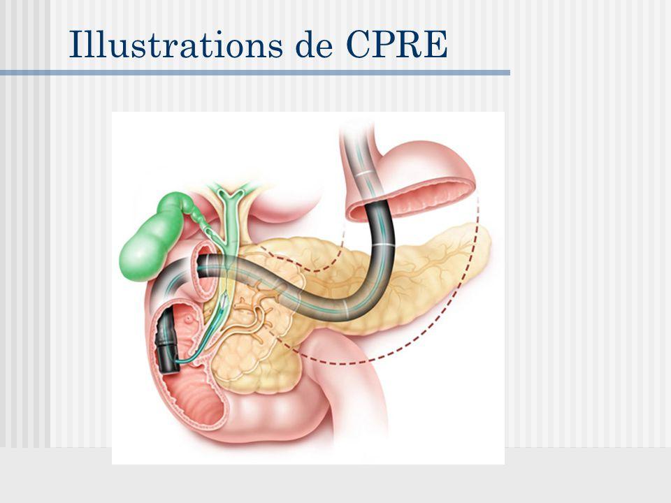 Illustrations de CPRE