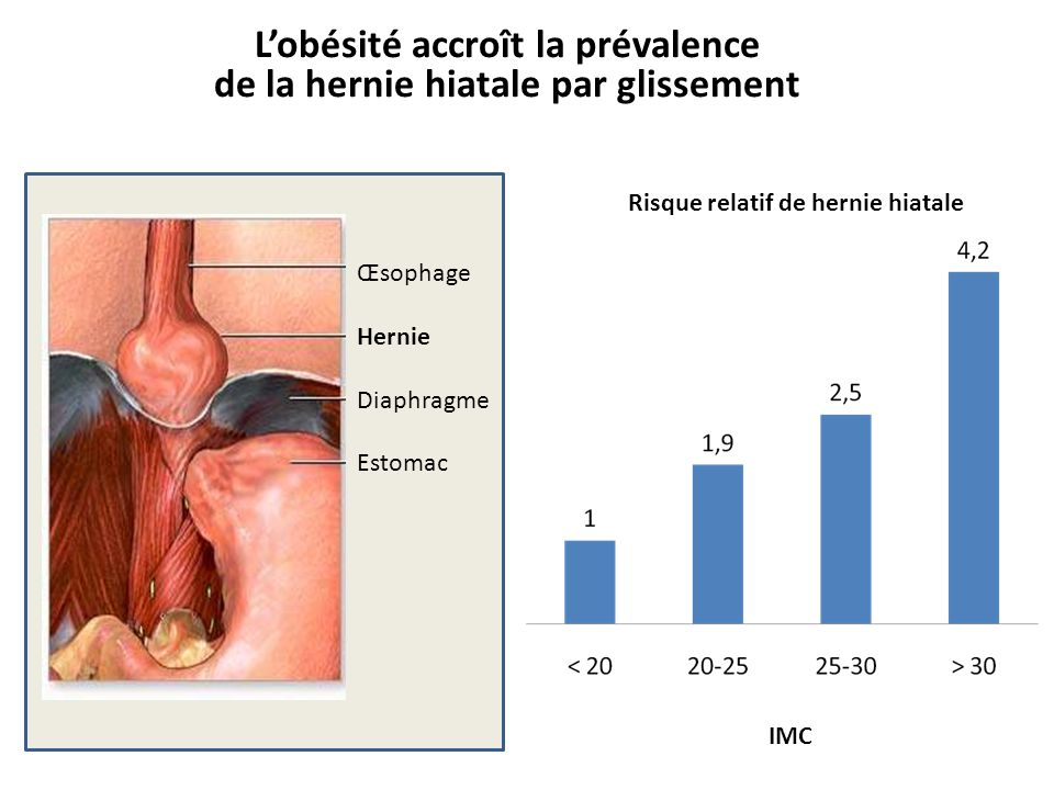 L'obésité accroît la prévalence de la hernie hiatale par glissement