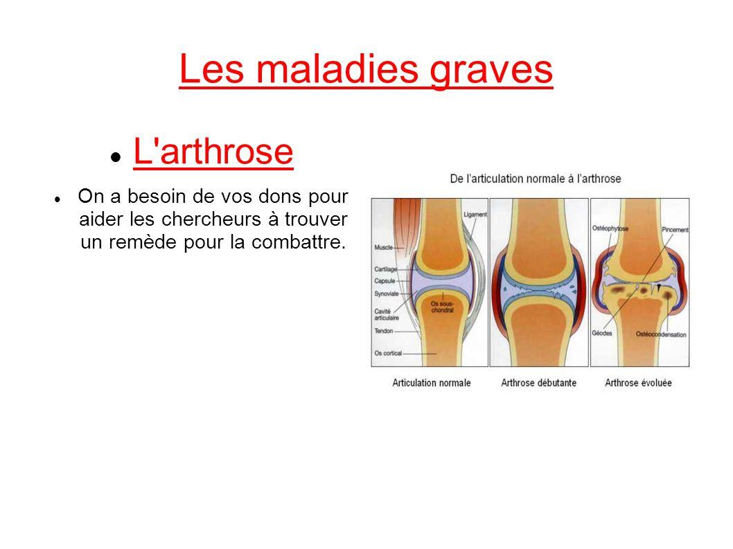 Les maladies graves L arthrose