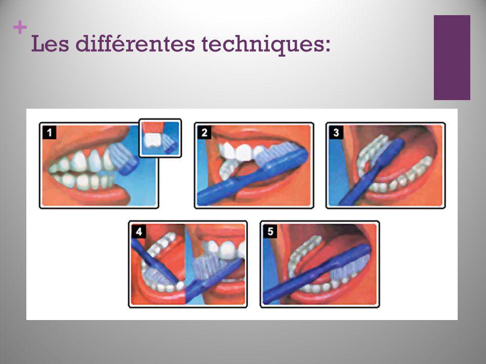 Les différentes techniques: