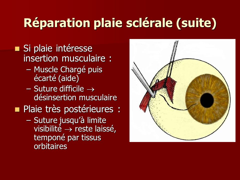 Réparation plaie sclérale (suite)