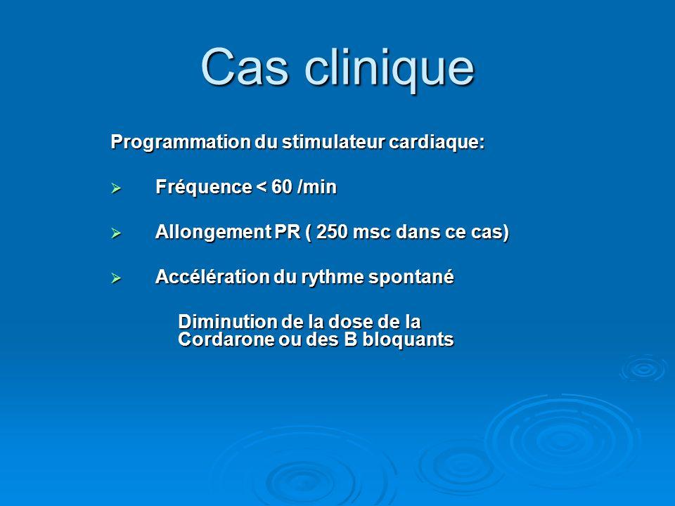 Cas clinique Programmation du stimulateur cardiaque: