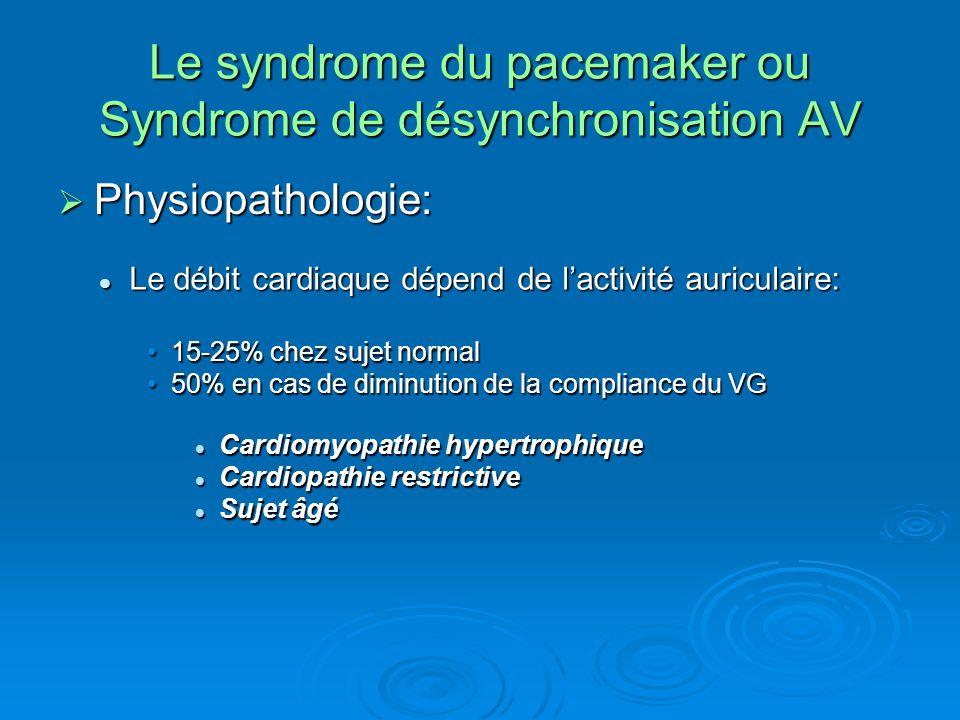 Le syndrome du pacemaker ou Syndrome de désynchronisation AV