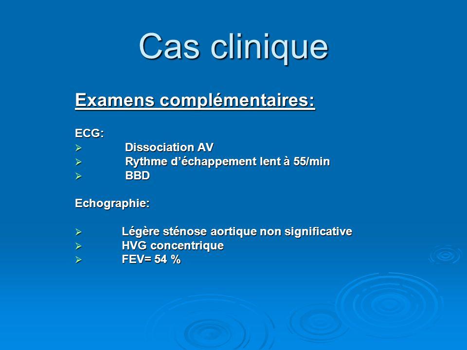 Cas clinique Examens complémentaires: ECG: Dissociation AV