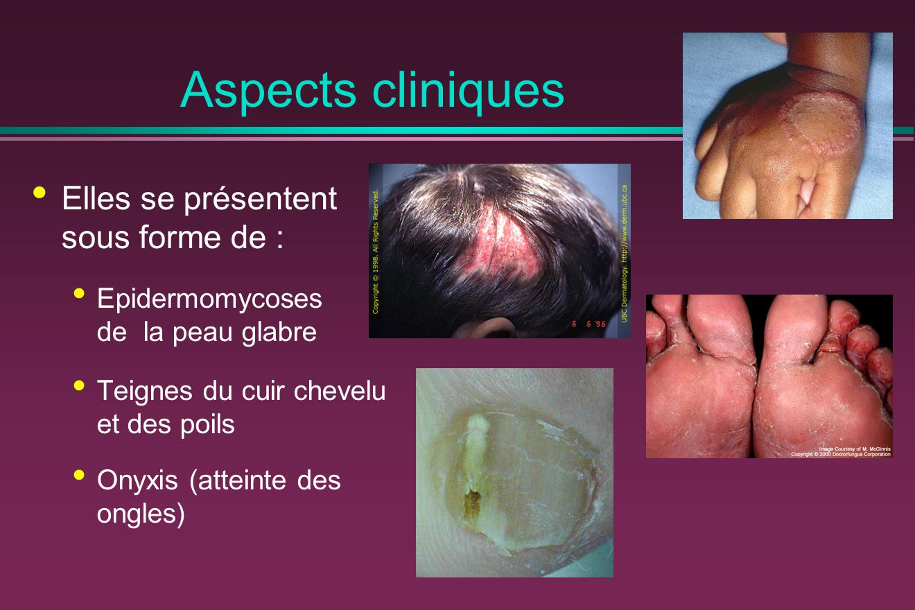 Aspects cliniques Elles se présentent sous forme de :