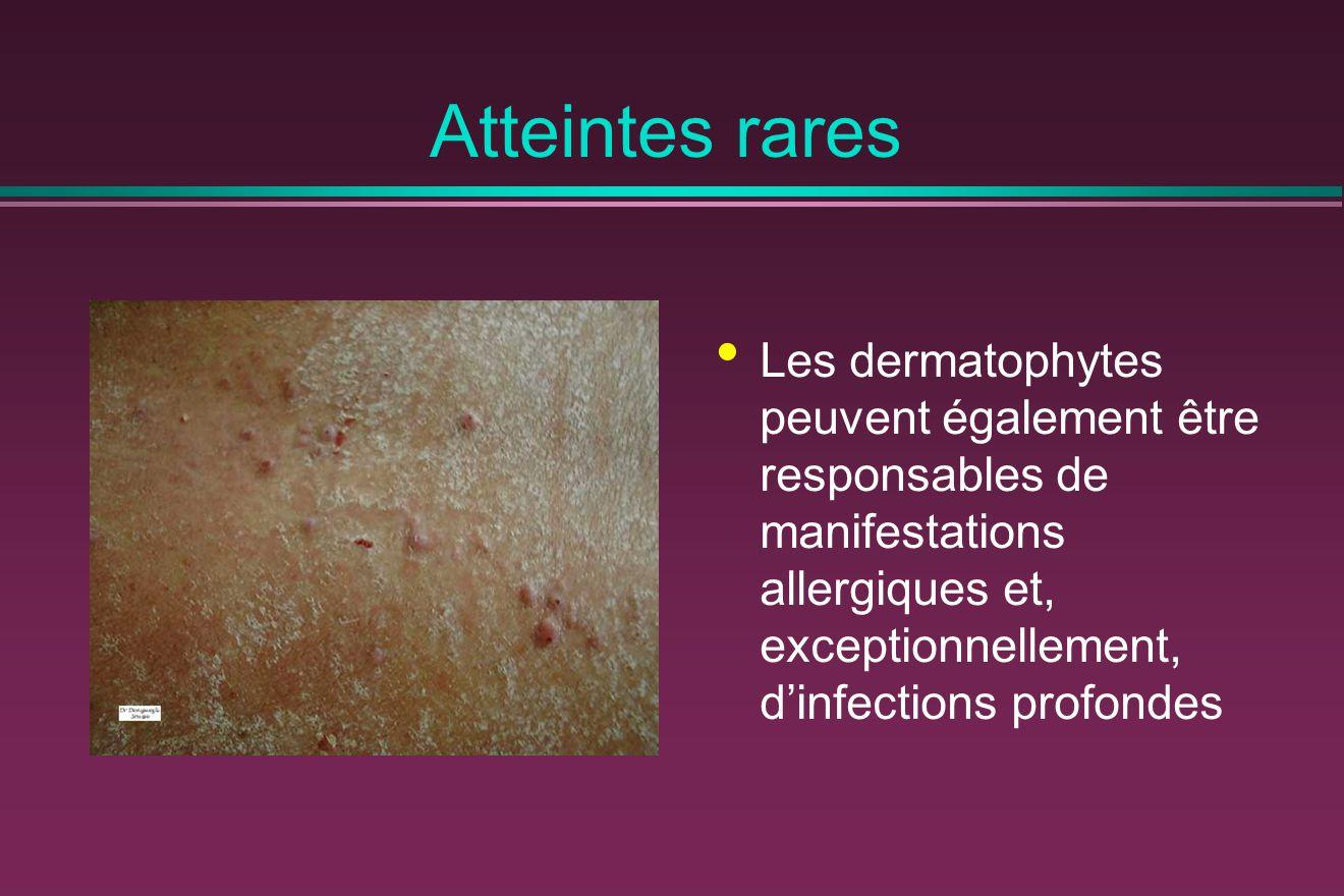 Atteintes rares Les dermatophytes peuvent également être responsables de manifestations allergiques et, exceptionnellement, d'infections profondes.
