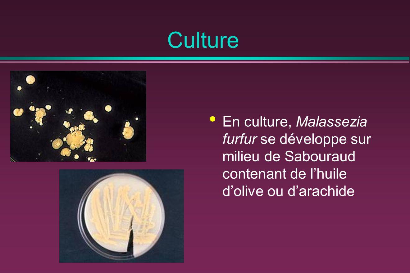 Culture En culture, Malassezia furfur se développe sur milieu de Sabouraud contenant de l'huile d'olive ou d'arachide.