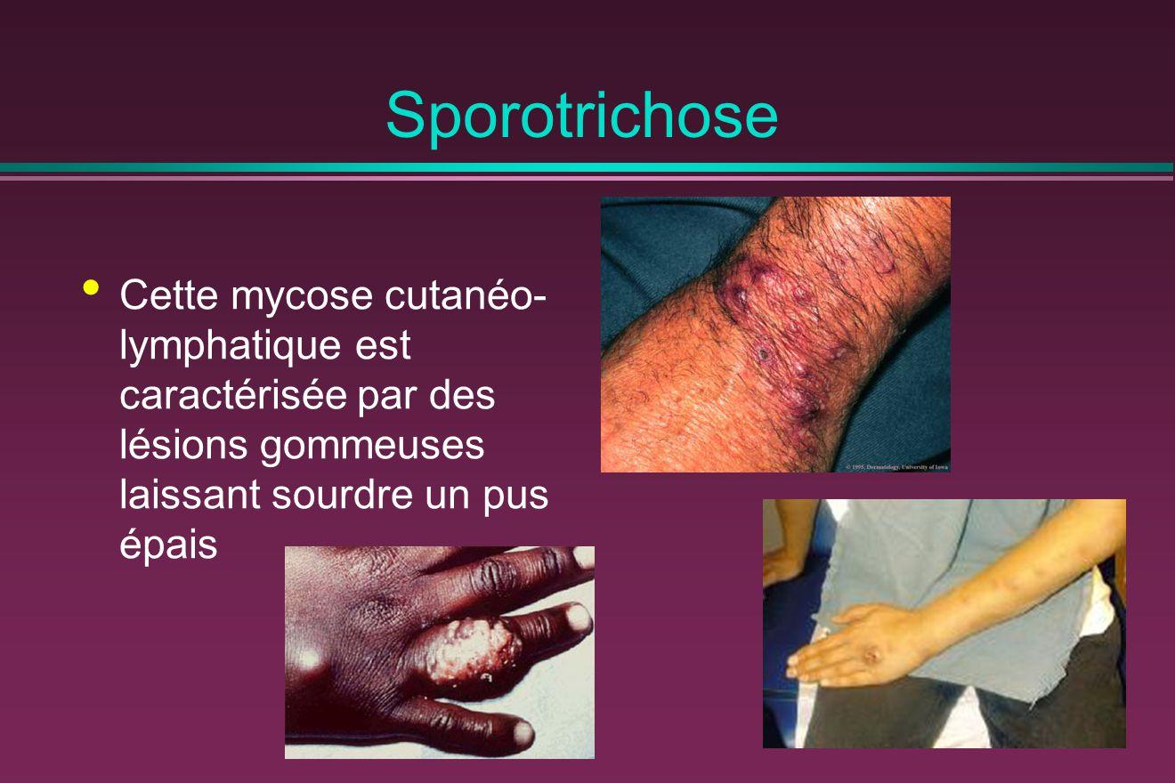 Sporotrichose Cette mycose cutanéo-lymphatique est caractérisée par des lésions gommeuses laissant sourdre un pus épais.
