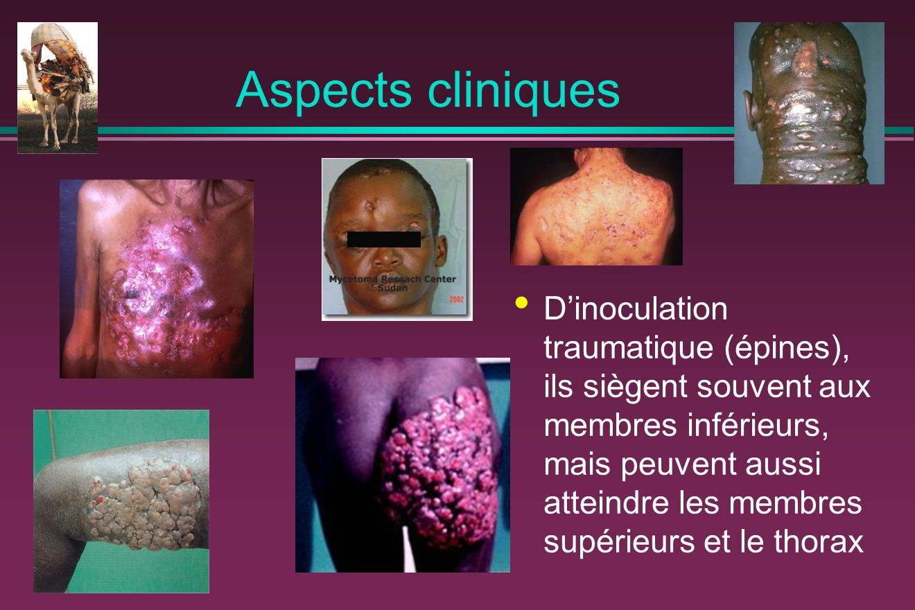 Aspects cliniques
