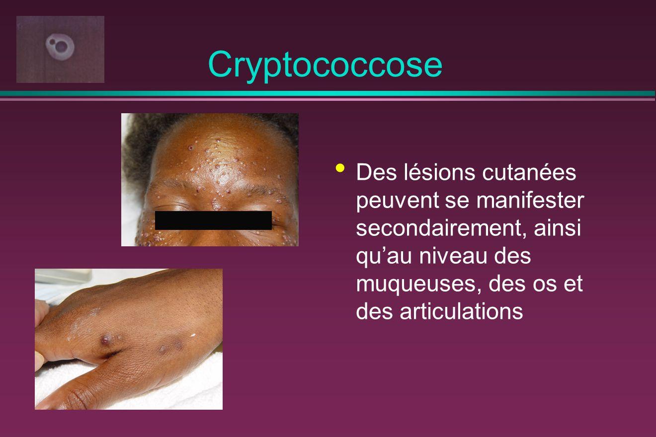 Cryptococcose Des lésions cutanées peuvent se manifester secondairement, ainsi qu'au niveau des muqueuses, des os et des articulations.