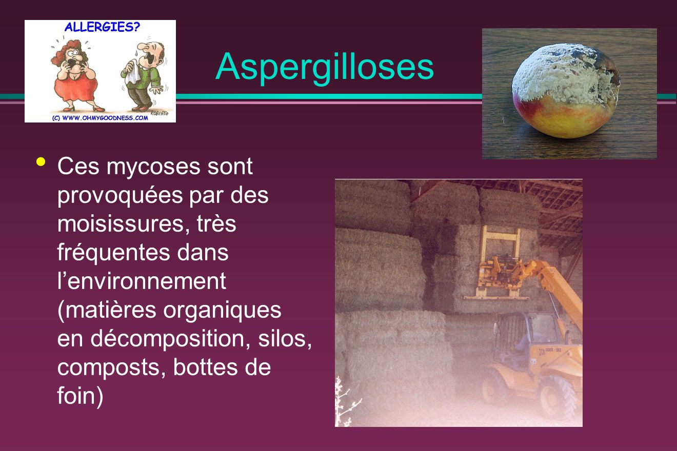 Aspergilloses