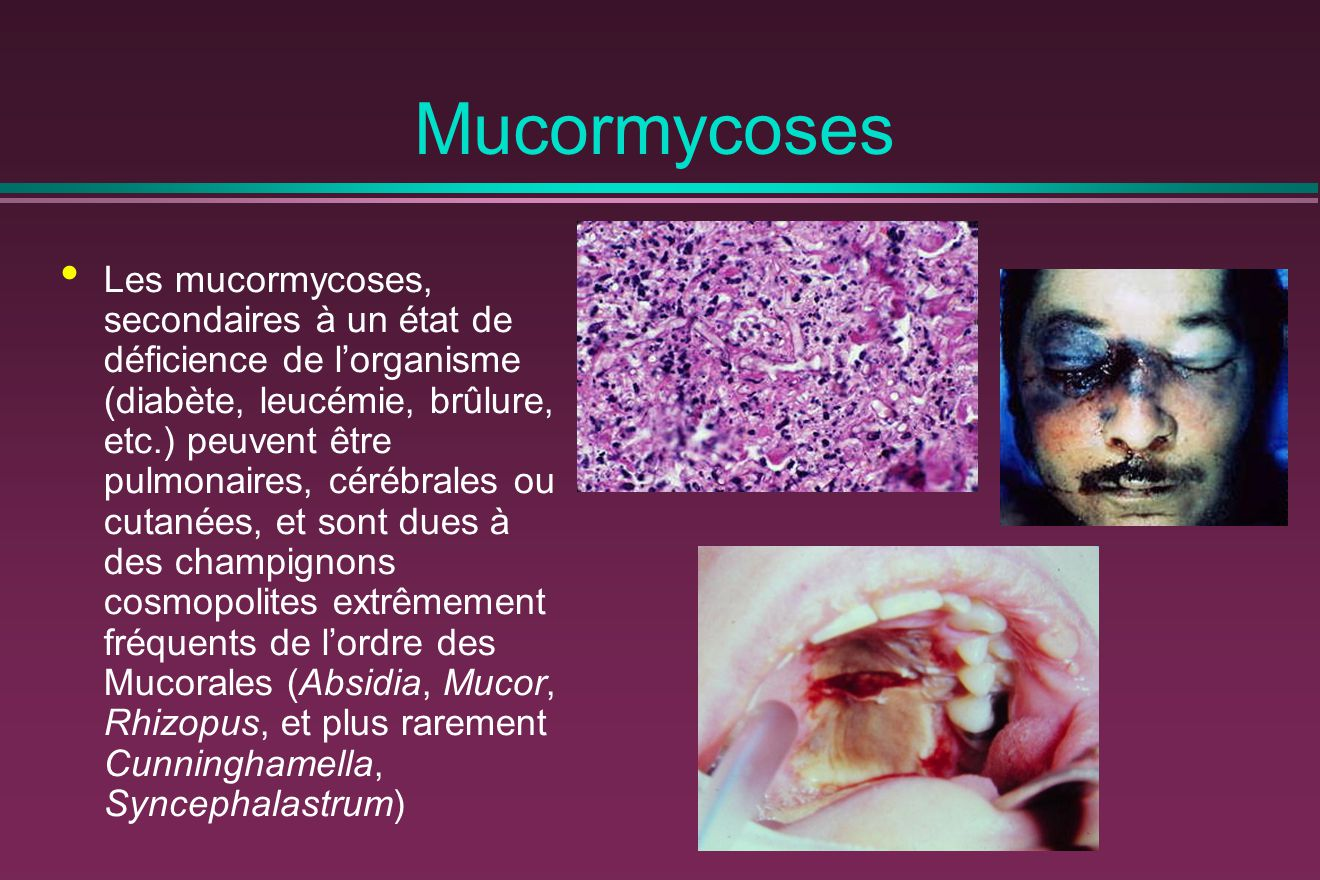 Mucormycoses