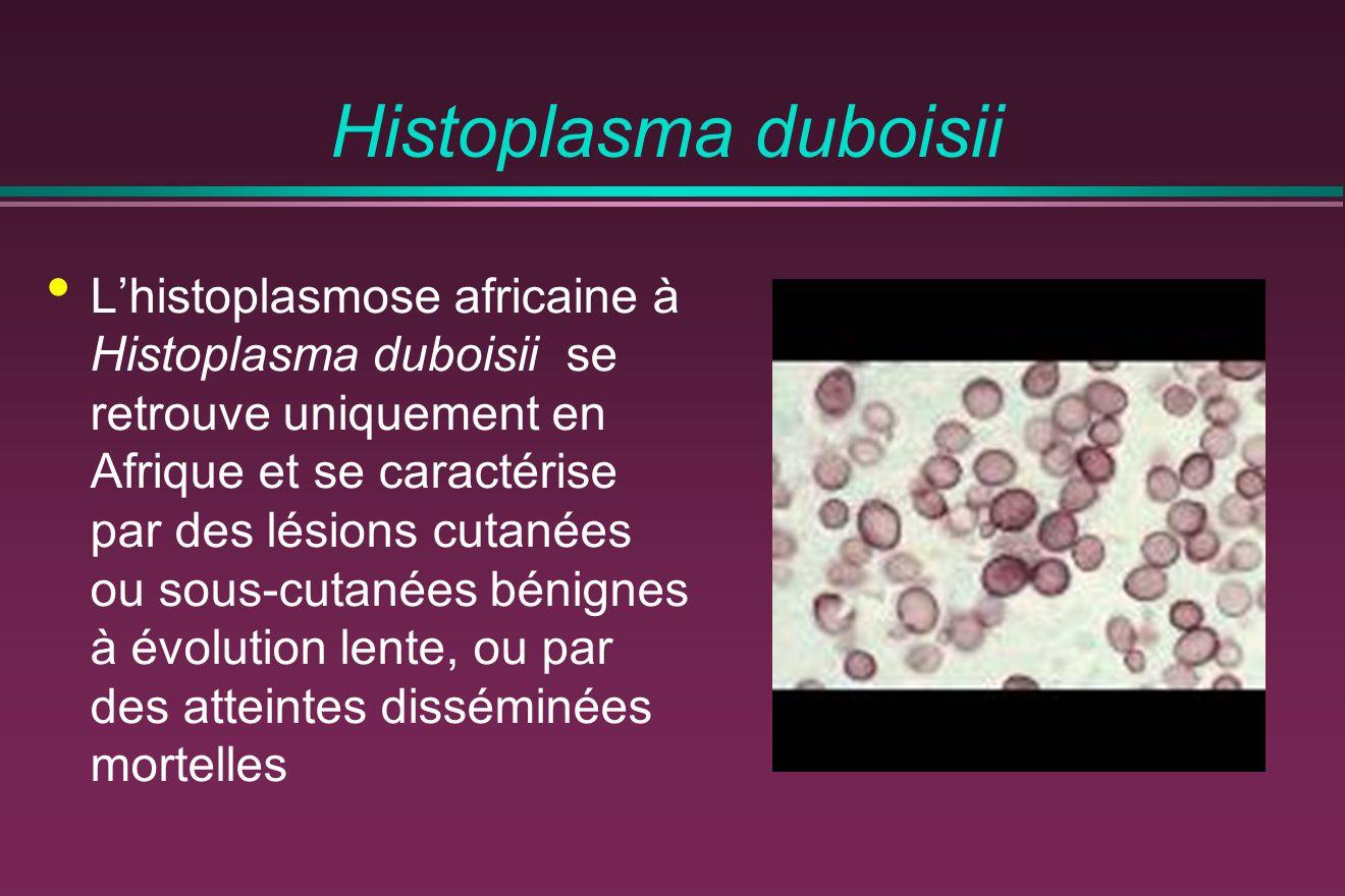 Histoplasma duboisii