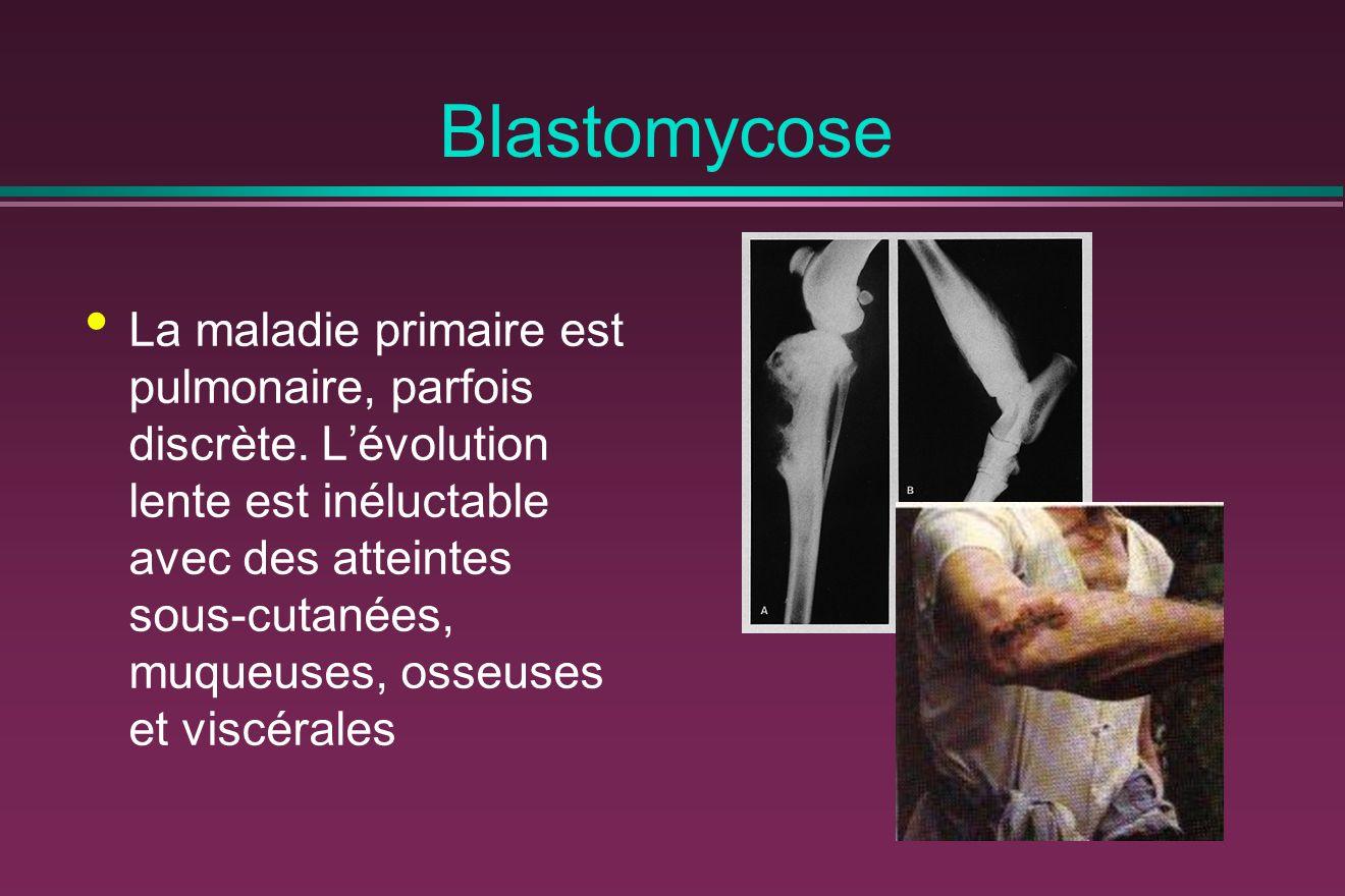 Blastomycose