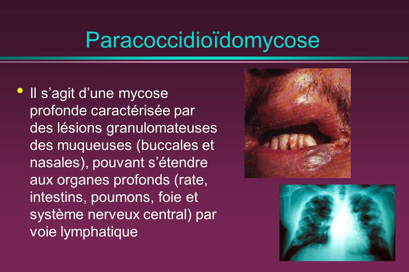 Paracoccidioïdomycose
