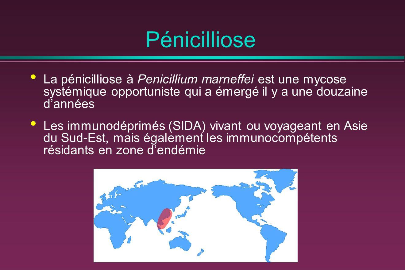 Pénicilliose La pénicilliose à Penicillium marneffei est une mycose systémique opportuniste qui a émergé il y a une douzaine d'années.