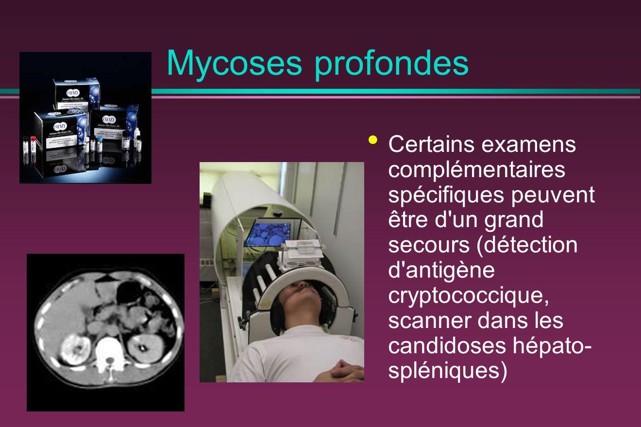 Mycoses profondes