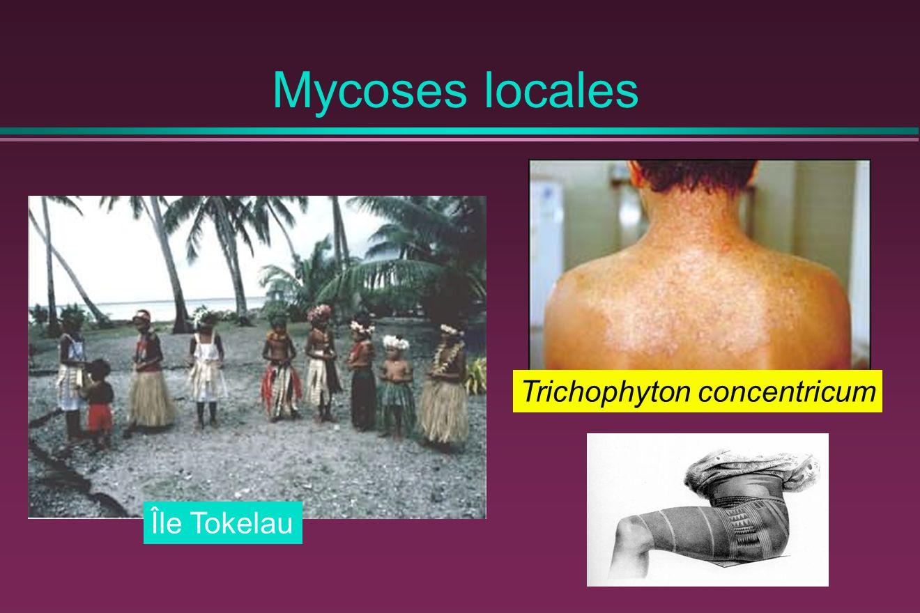 Mycoses locales Trichophyton concentricum Île Tokelau