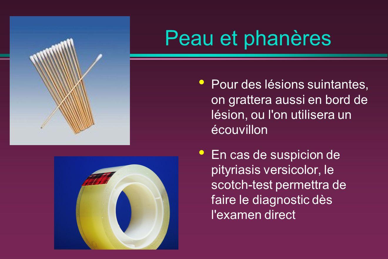 Peau et phanères Pour des lésions suintantes, on grattera aussi en bord de lésion, ou l on utilisera un écouvillon.