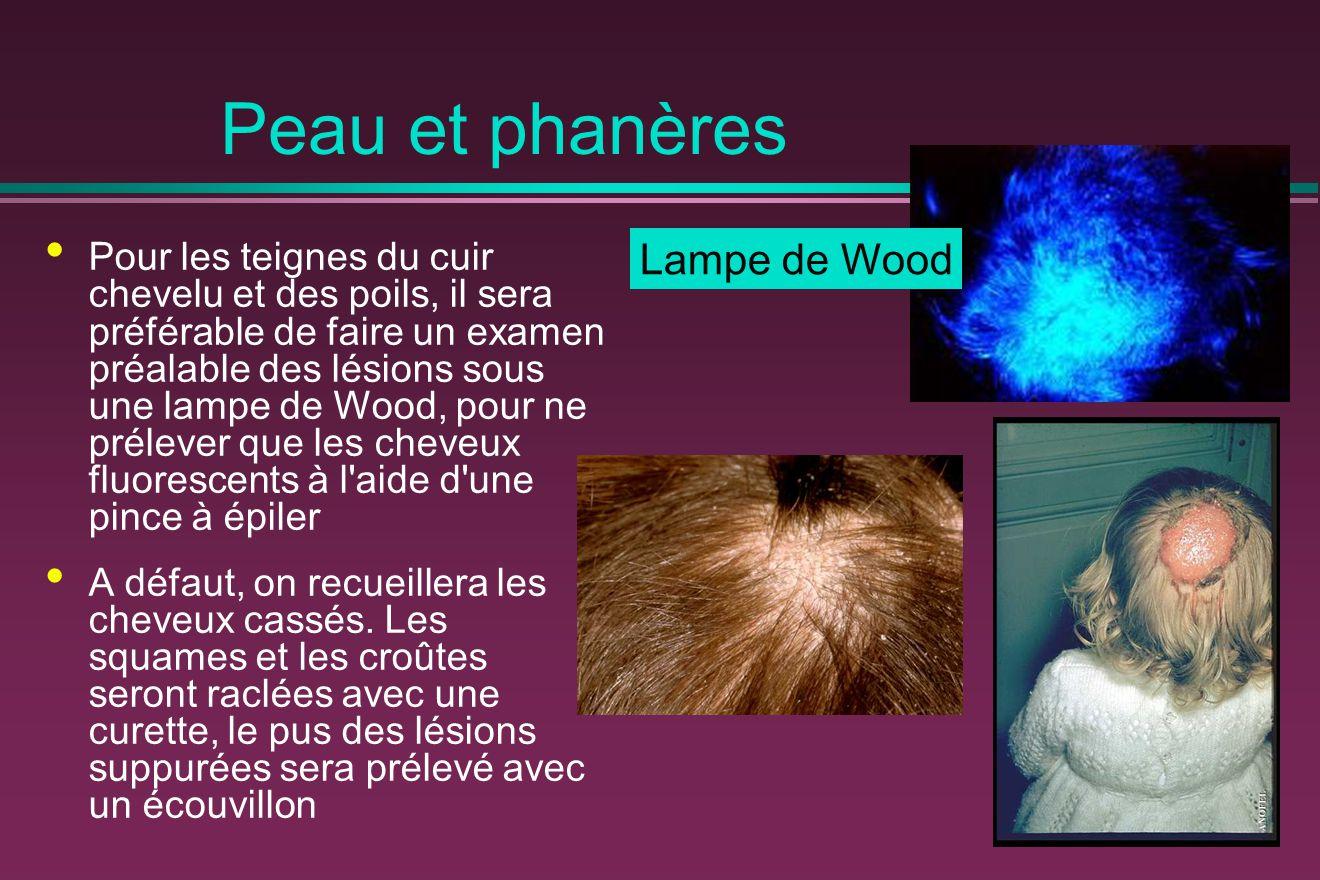 Peau et phanères Lampe de Wood