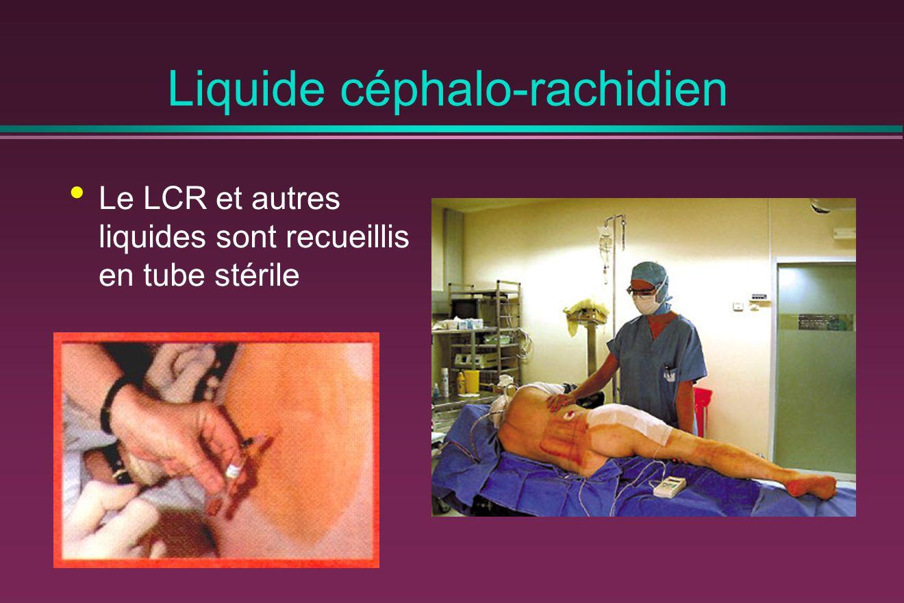 Liquide céphalo-rachidien