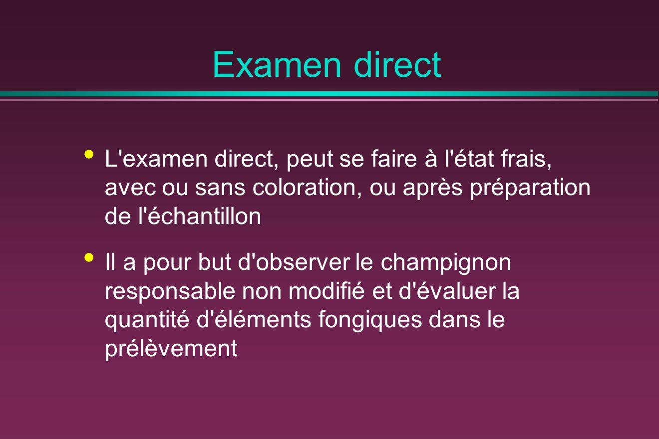 Examen direct L examen direct, peut se faire à l état frais, avec ou sans coloration, ou après préparation de l échantillon.