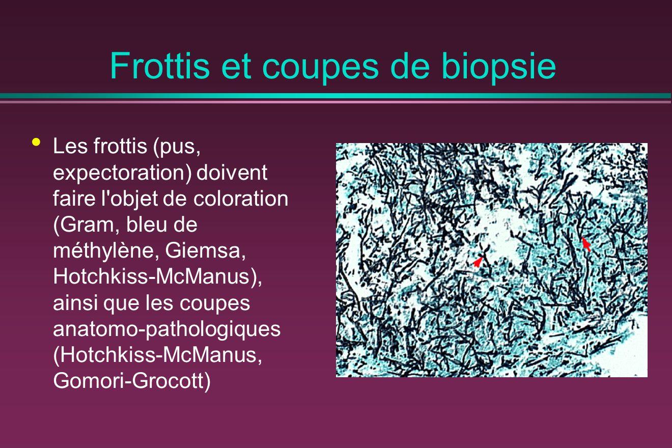 Frottis et coupes de biopsie