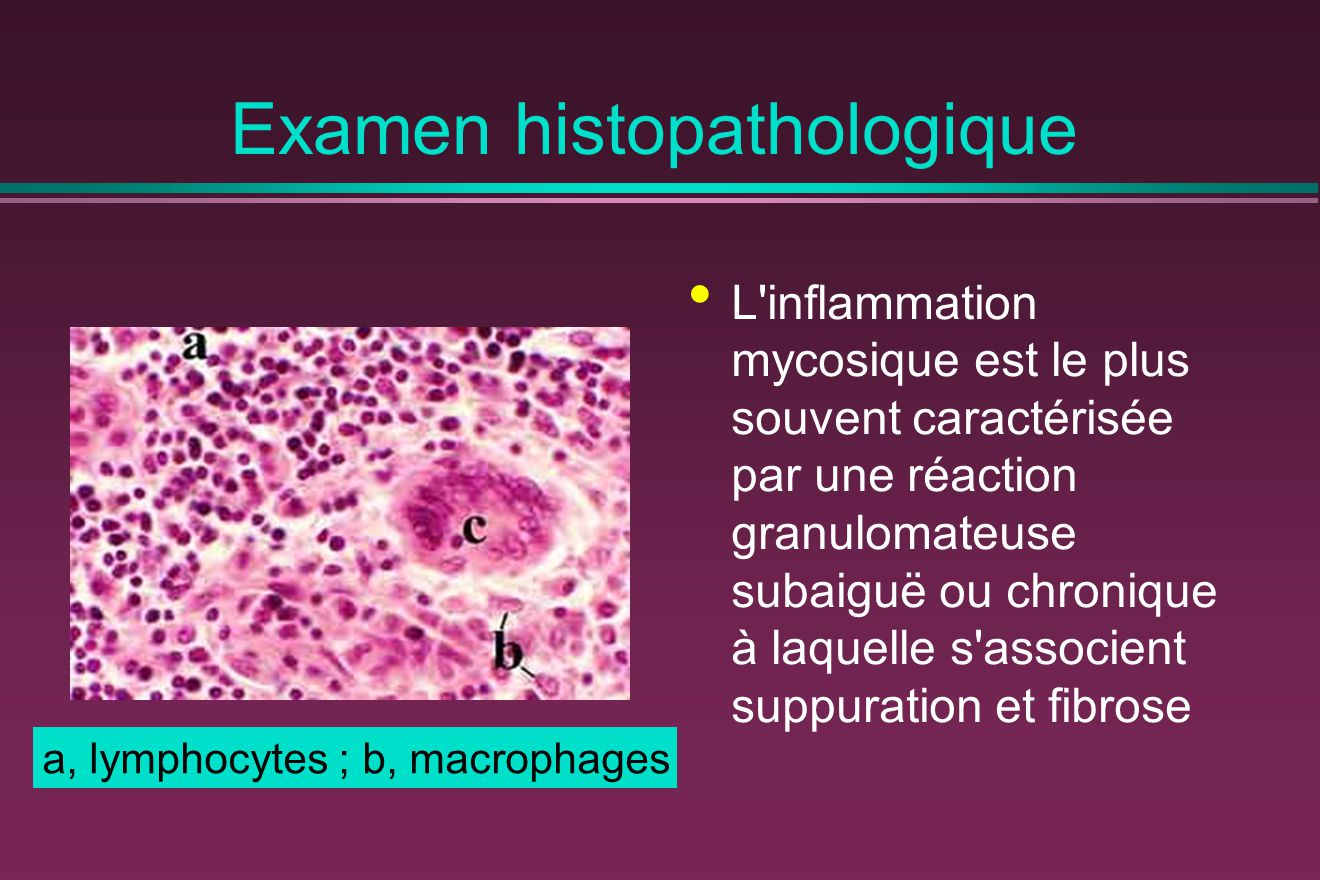 Examen histopathologique