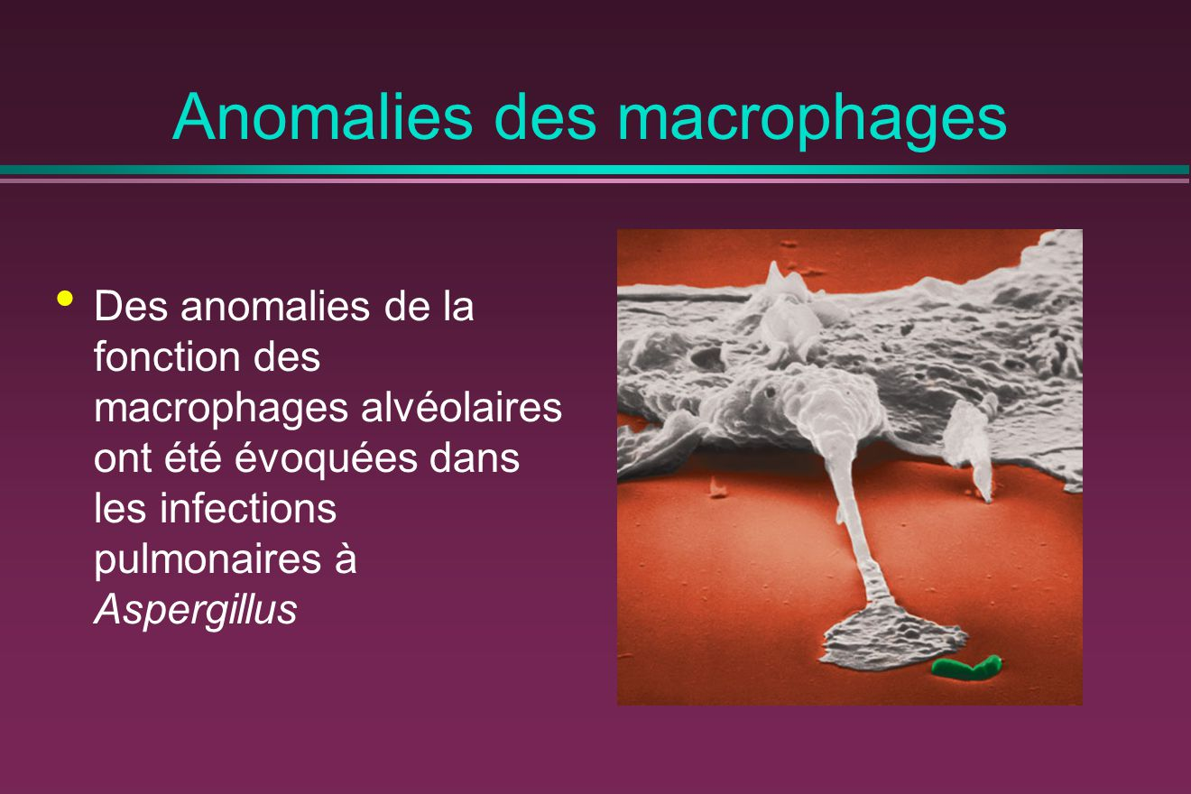 Anomalies des macrophages