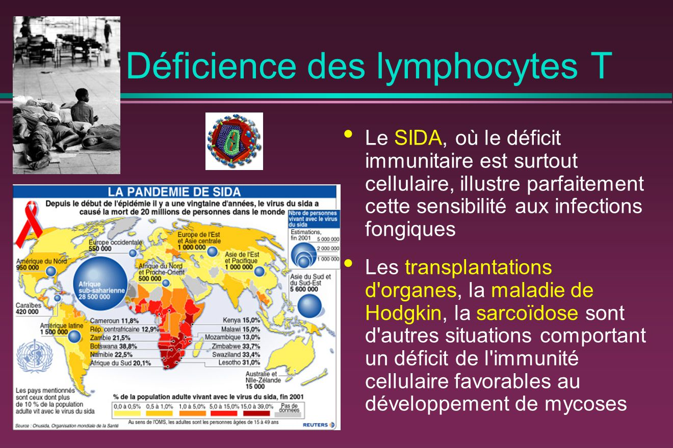 Déficience des lymphocytes T