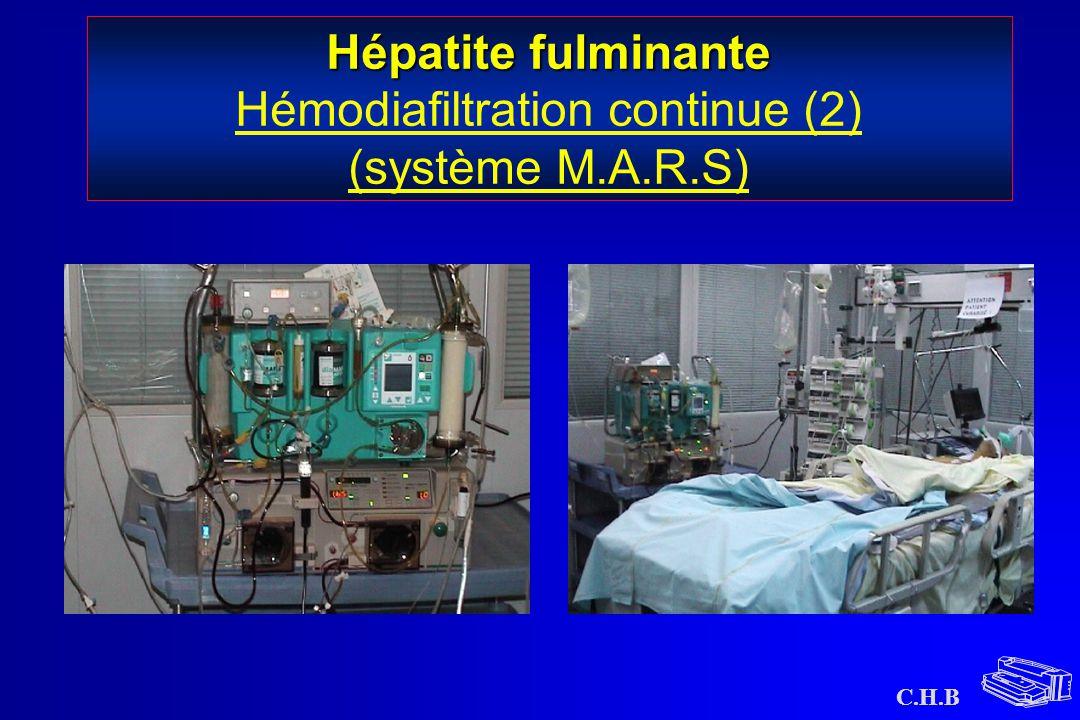 Hépatite fulminante Hémodiafiltration continue (2) (système M.A.R.S)