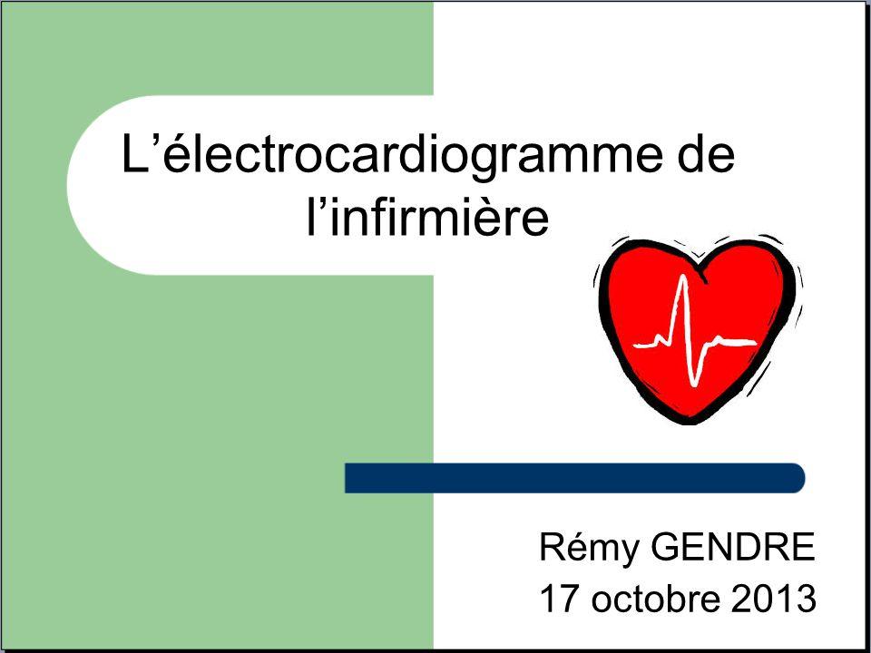 L'électrocardiogramme de l'infirmière
