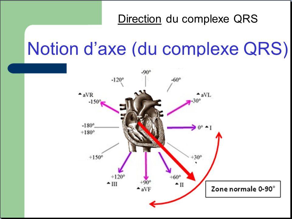 Notion d'axe (du complexe QRS)