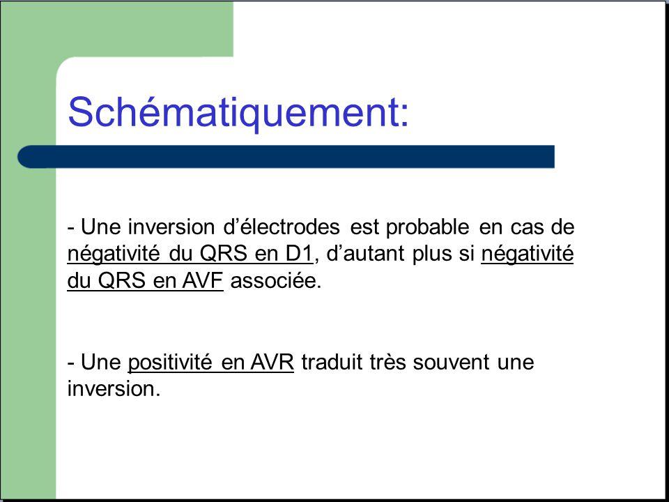 Schématiquement: - Une inversion d'électrodes est probable en cas de négativité du QRS en D1, d'autant plus si négativité du QRS en AVF associée.