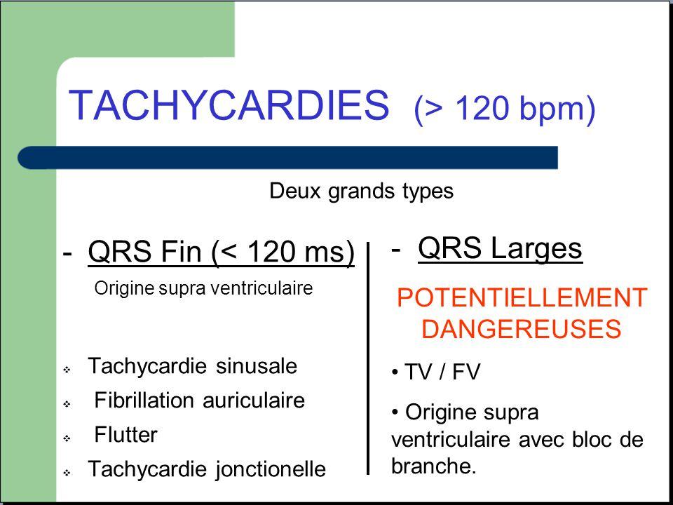 TACHYCARDIES (> 120 bpm)