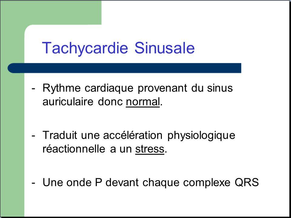 Tachycardie Sinusale Rythme cardiaque provenant du sinus auriculaire donc normal.