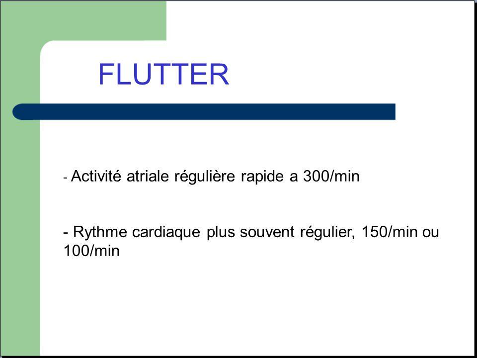FLUTTER Rythme cardiaque plus souvent régulier, 150/min ou 100/min