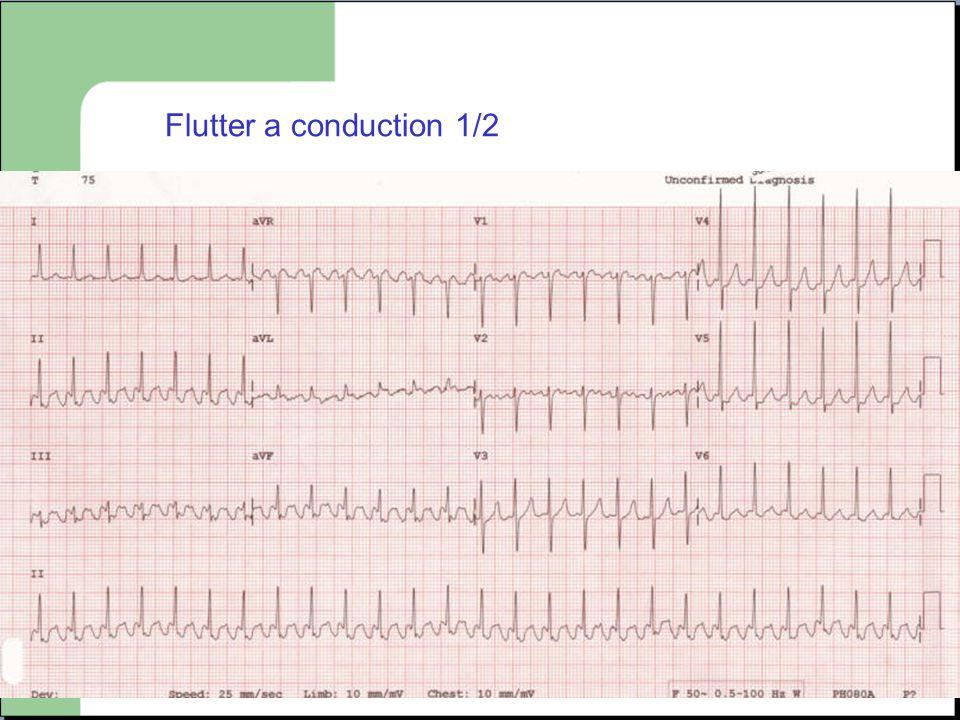 Flutter a conduction 1/2