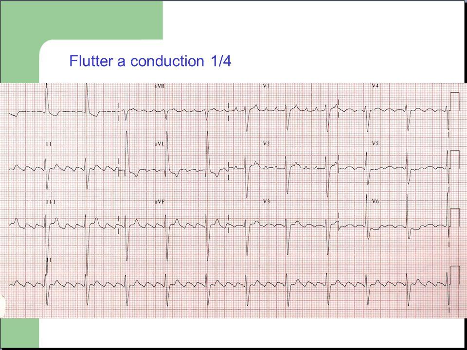 Flutter a conduction 1/4