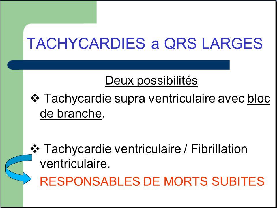 TACHYCARDIES a QRS LARGES