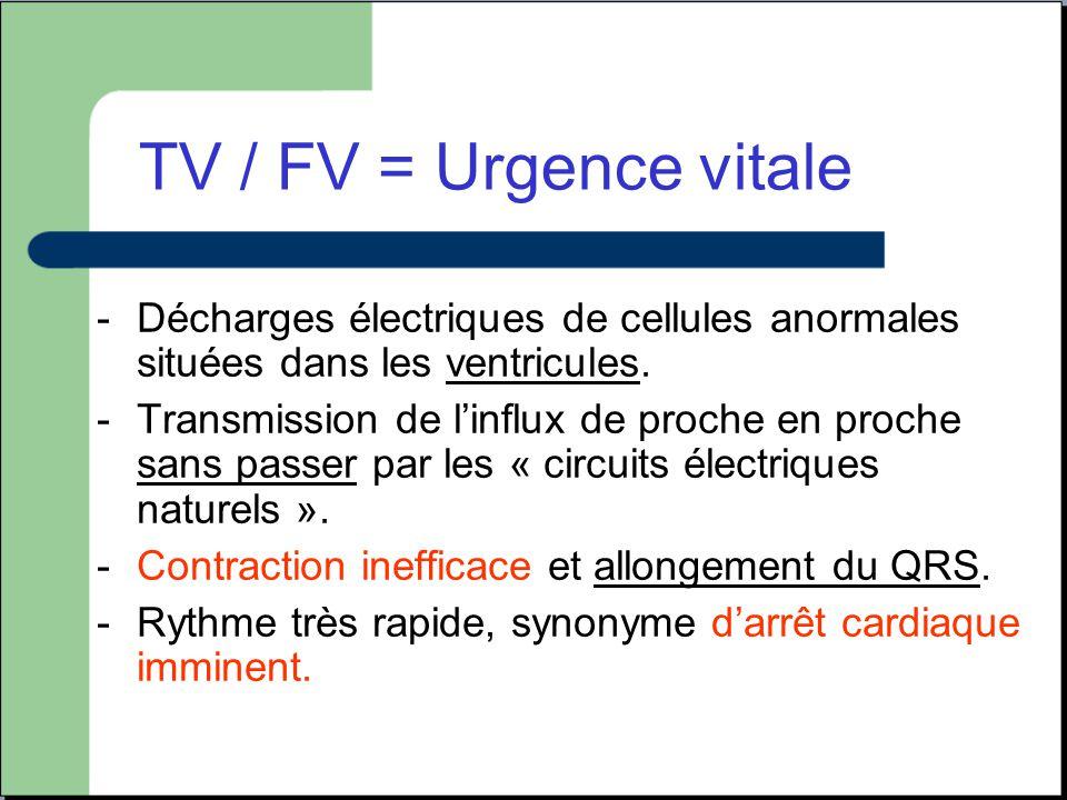 TV / FV = Urgence vitale Décharges électriques de cellules anormales situées dans les ventricules.