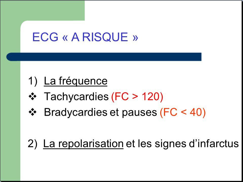 ECG « A RISQUE » La fréquence Tachycardies (FC > 120)