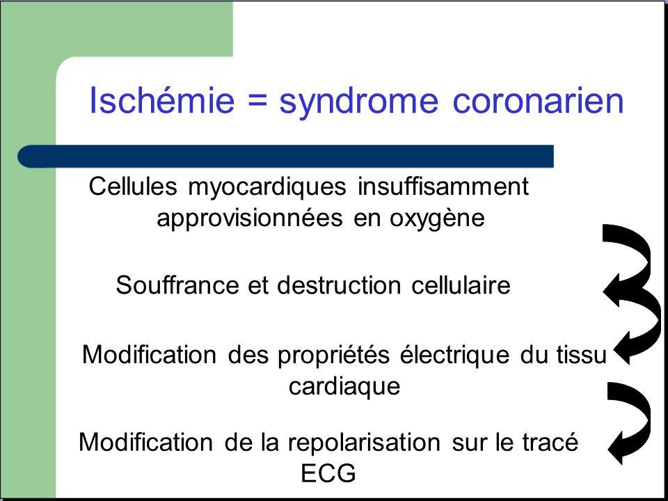 Ischémie = syndrome coronarien
