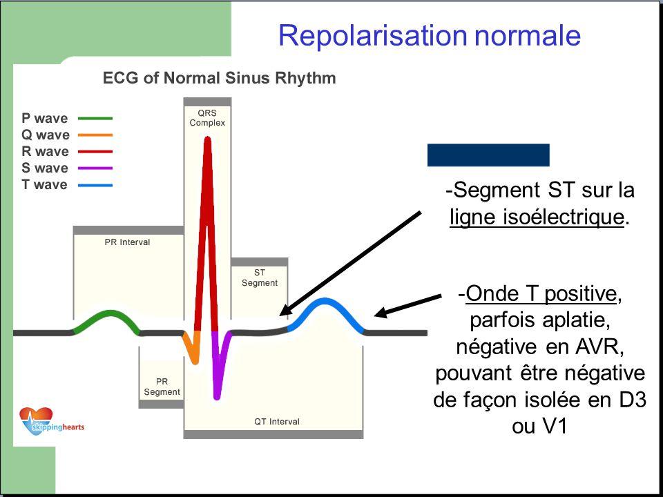 Repolarisation normale