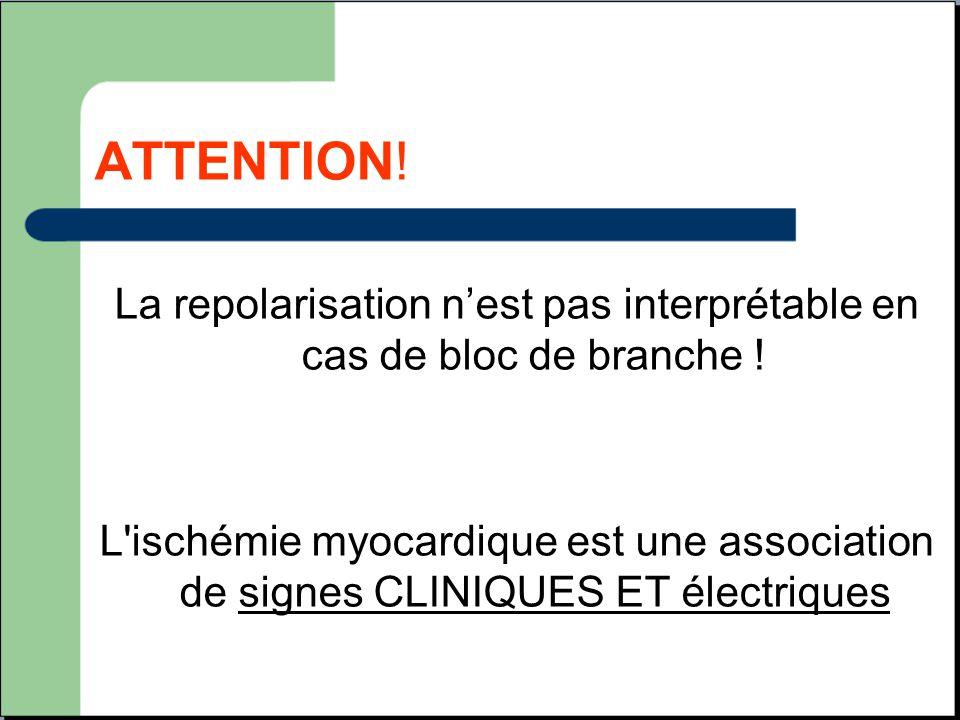 La repolarisation n'est pas interprétable en cas de bloc de branche !