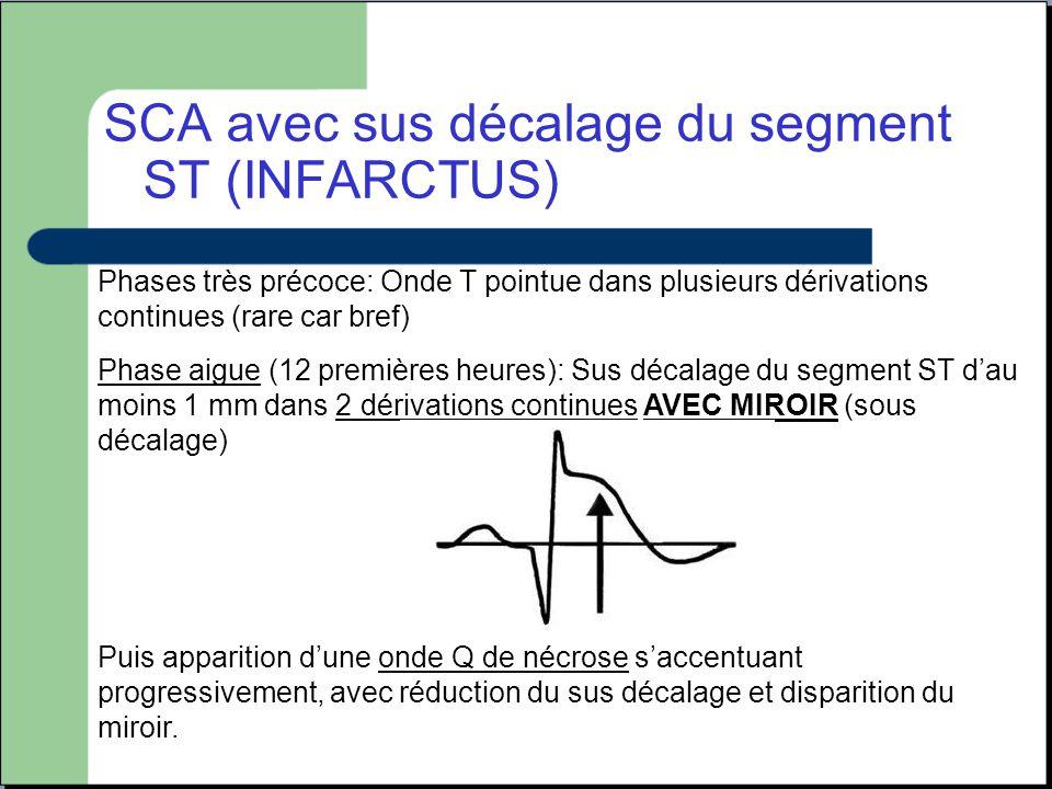 SCA avec sus décalage du segment ST (INFARCTUS)