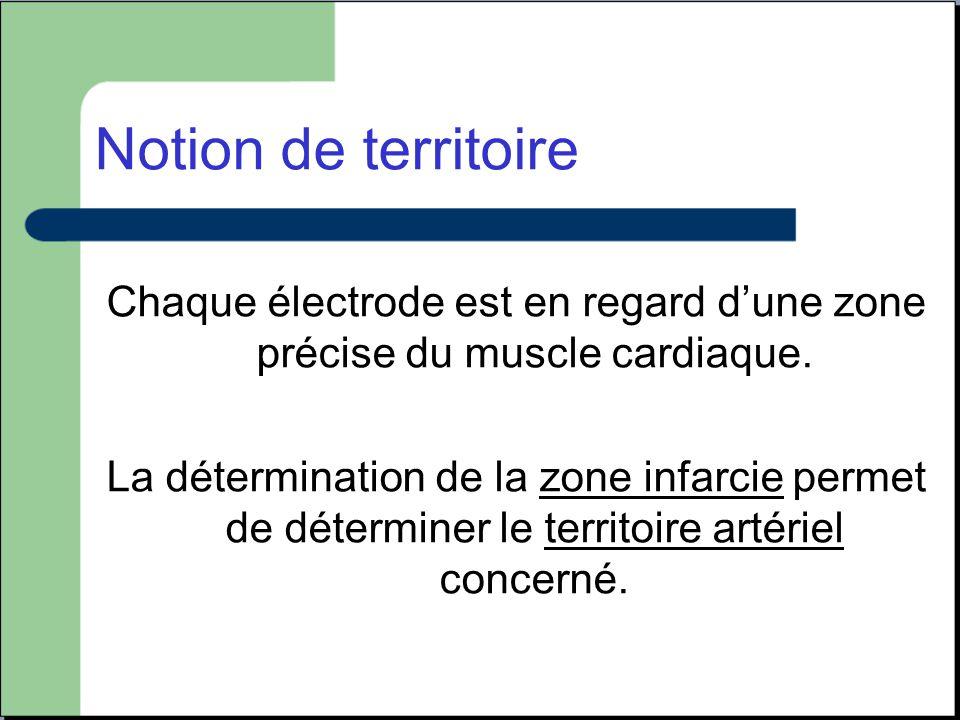 Chaque électrode est en regard d'une zone précise du muscle cardiaque.